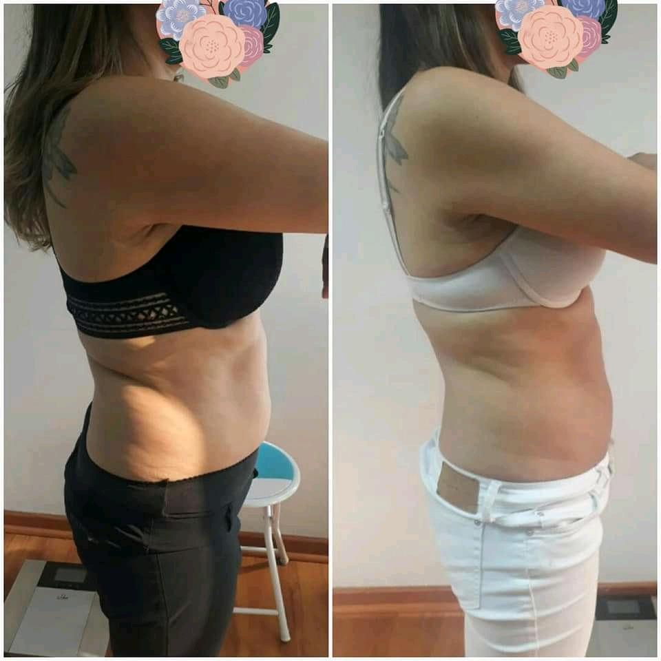 Antes y despues. 8 sesiones de tratamiento reductivo.